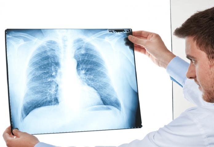 Crearán máquina portátil de rayos X